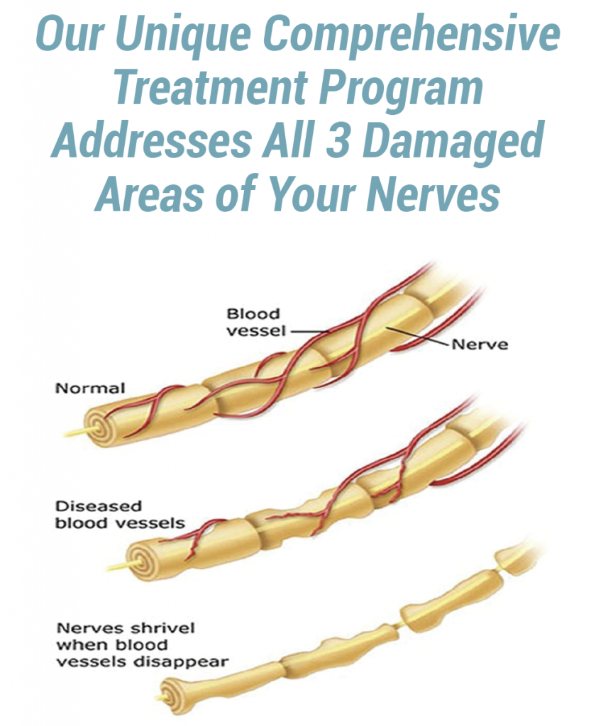 stages of neuropathy